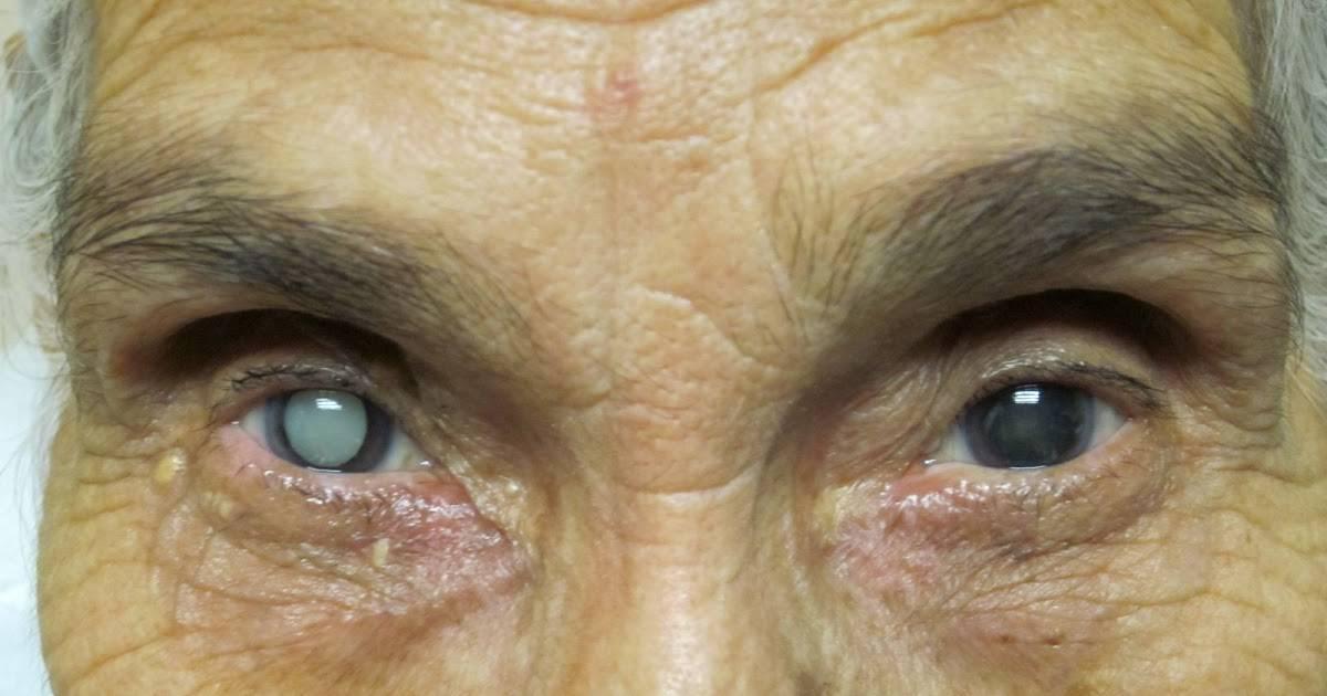 Лечение катаракты у пожилых людей, операция и методы без неё, цены