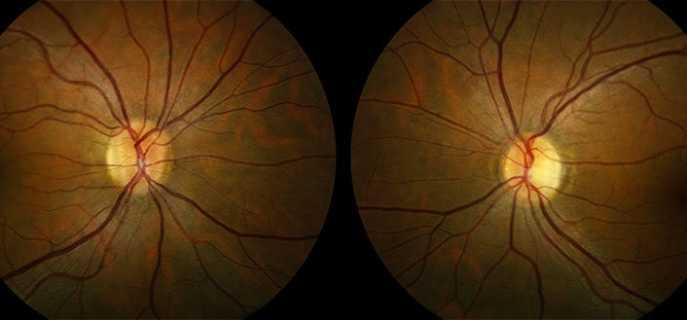 """Неврит зрительного нерва: понятие, виды, лечение - """"здоровое око"""""""