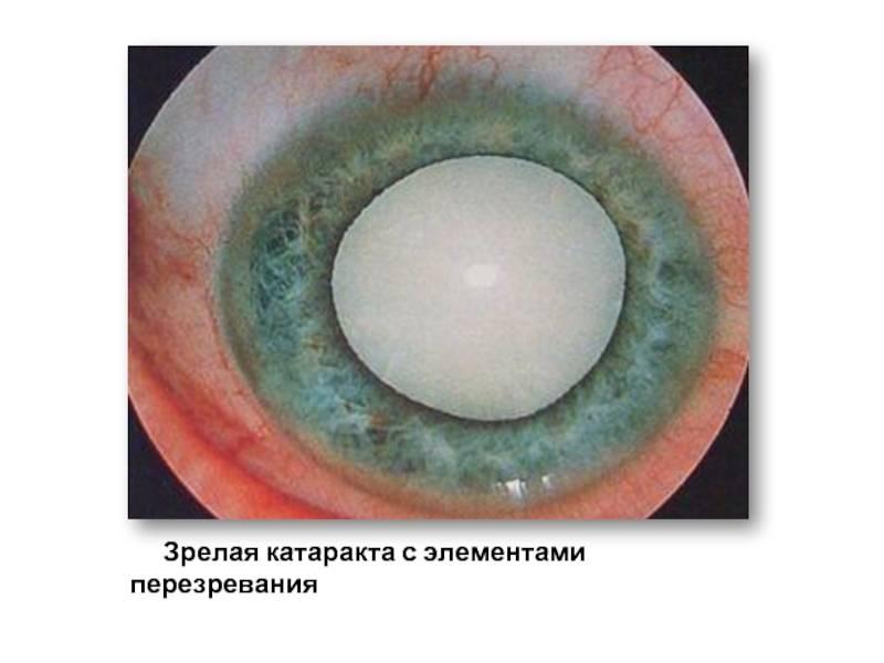 Диагностика и методы лечения перезрелой катаракты