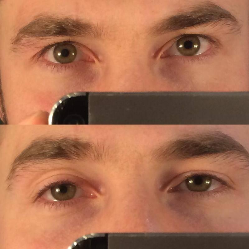Один глаз больше другого - причины, как исправить