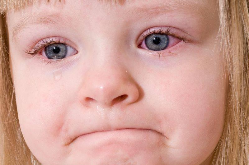 Почему повышается температура при коньюктивите у детей