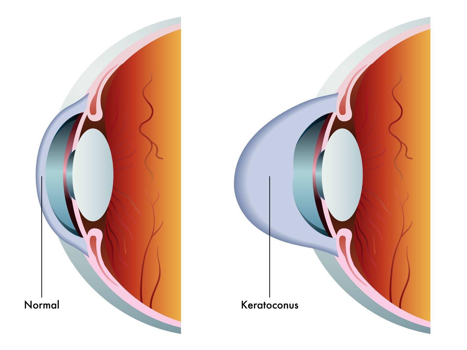 Кератоконус — описание, симптомы, лечение