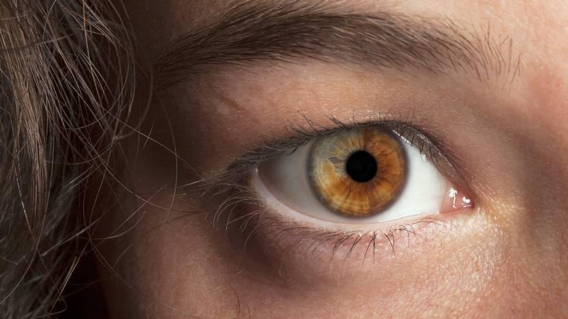 Что такое гетерохромия глаз? причины разного цвета глаз у людей