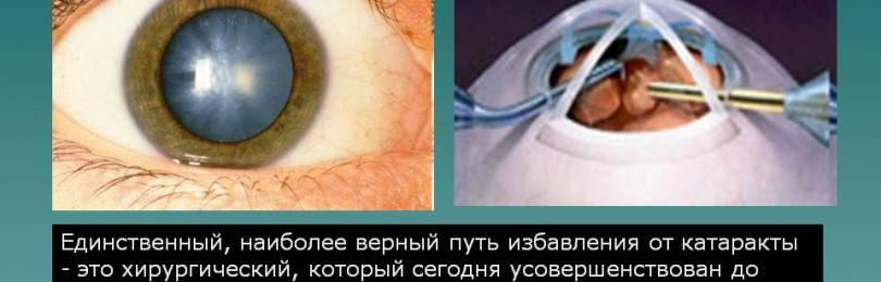 Мне предстоит замена хрусталика глаза при катаракте. как пройдет послеоперационный период?