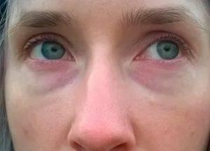 Почему под глазами синие круги у взрослого и у ребенка. как убрать