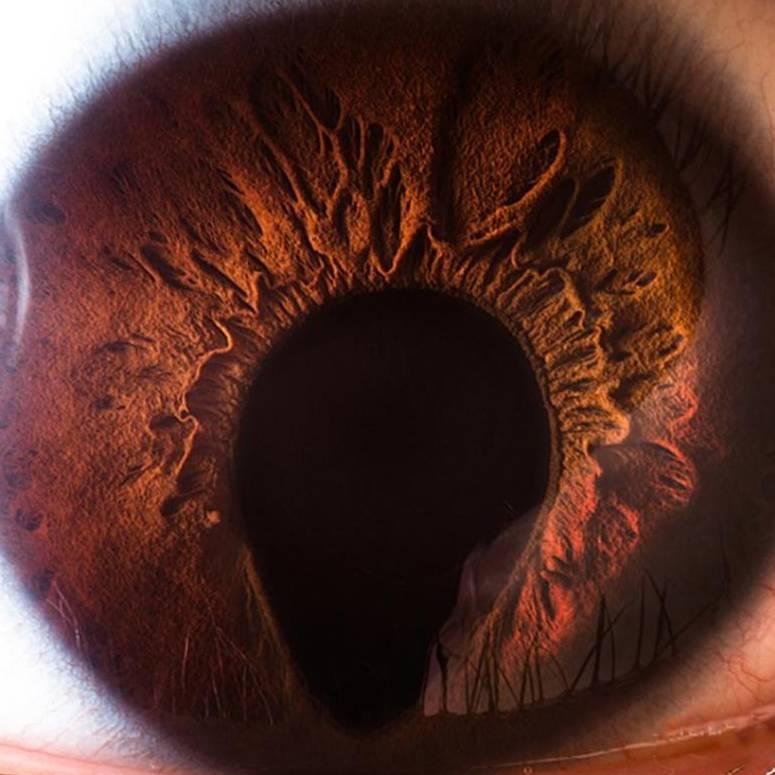 Анизокория и мидриаз: причины зрачков разного размера - medside.ru