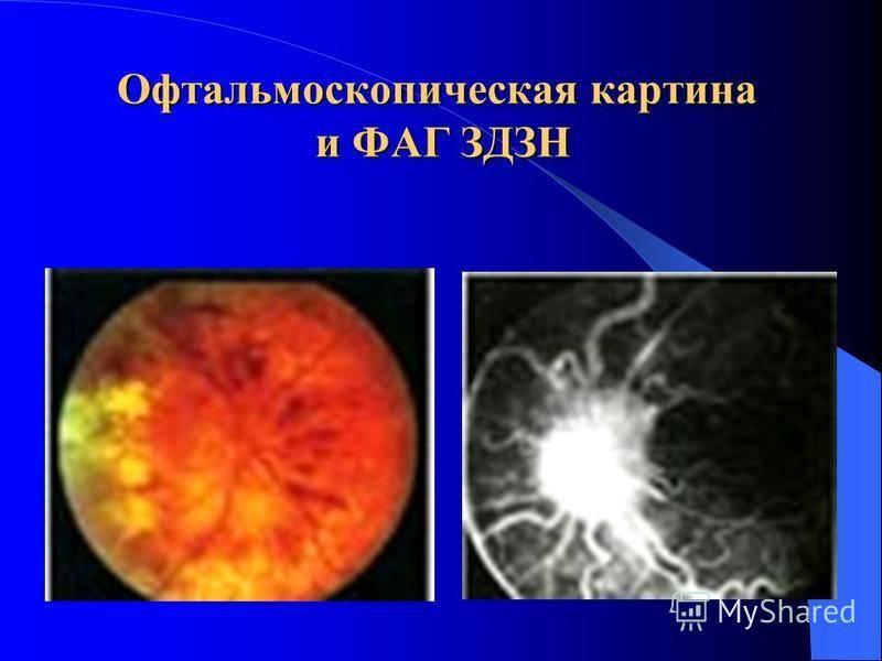 Застойный диск зрительного нерва. причины, симптомы, лечение. застойный диск зрительного нерва: причины и лечение заболевания