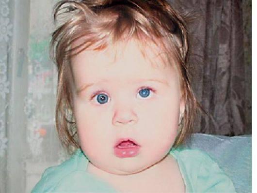 Катаракта у детей до года и старше (врождённая и пр): причины, симптомы, лечение и др