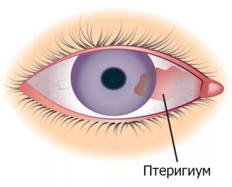 Птеригиум - лечение, удаление