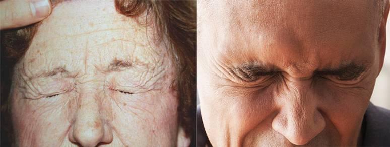 Симптомы, причины, лечение блефароспазма и пр аспекты + фото