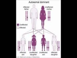 Передаётся ли по наследству косоглазие: формы и причины