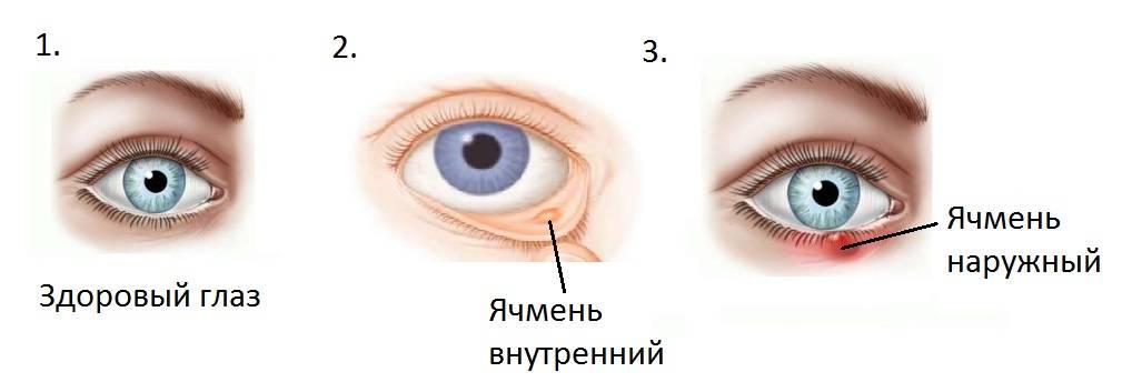 Заразен ли ячмень на глазу