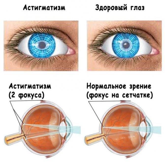Астигматизм, лечение: лечится это или нет, как лечить глаза, цена коррекции зрения, что такое прогрессирующий, можно ли вылечить