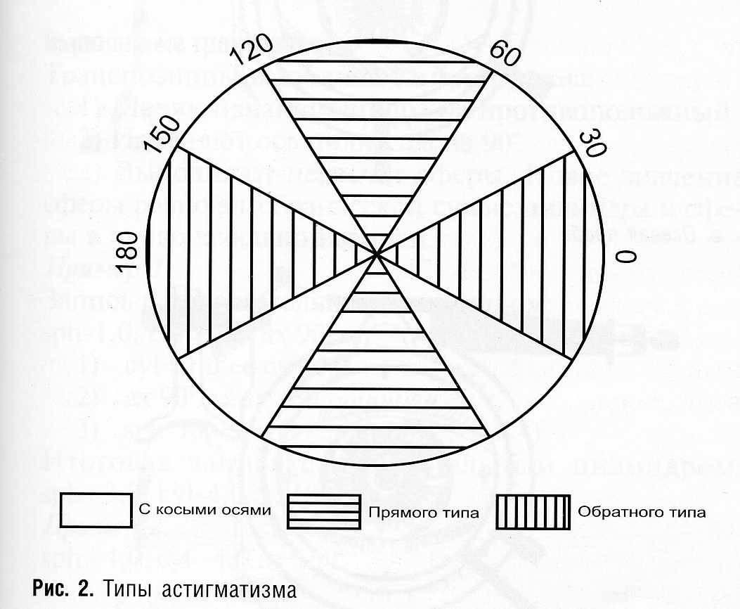Гиперметропический астигматизм - что это, причины и лечение