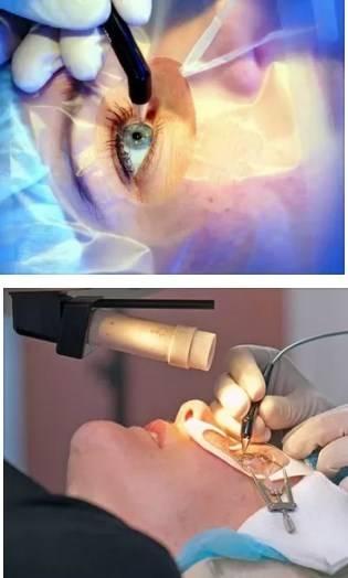 Можно ли повторно делать лазерную коррекцию зрения, могут ли сделать второй раз, повторная лкз через 10 лет, на сколько хватает
