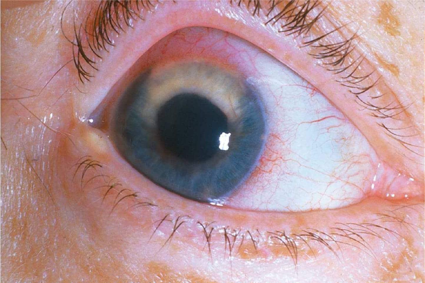 Внимание, опасность! вторичная глаукома — риск потери зрения