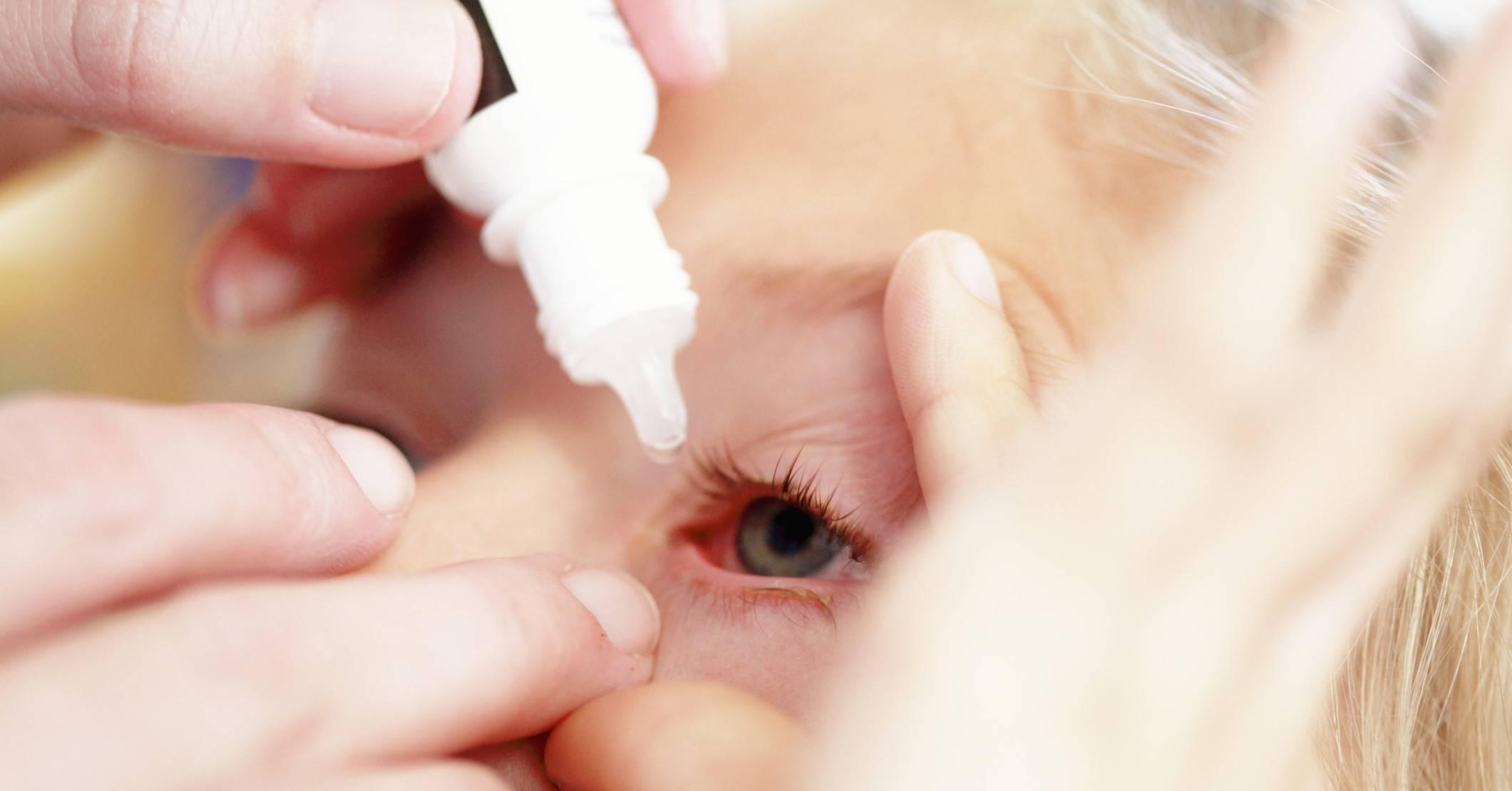 Как закапать ребенку в глаза капли – как правильно капать