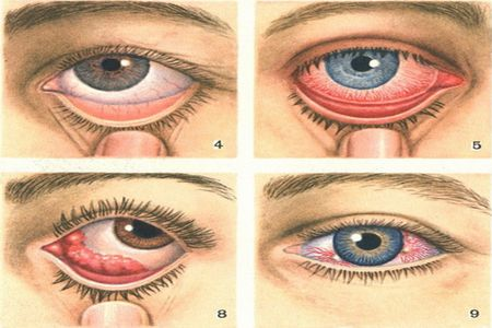 Острый и подострый конъюнктивит - симптомы, лечение, причины, фото