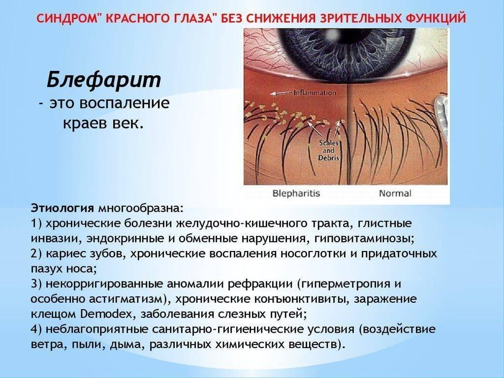Стеклянные глаза: патология или состояние души