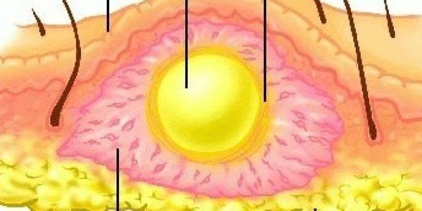 Чирей (фурункул) на глазу: фото век, как лечить