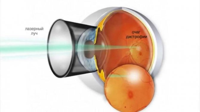 Сетчатка глаза лечение в международном центре охраны здоровья