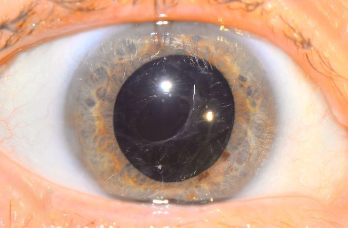 """Диплопия (двоение в глазах): симптомы и причины - """"здоровое око"""""""
