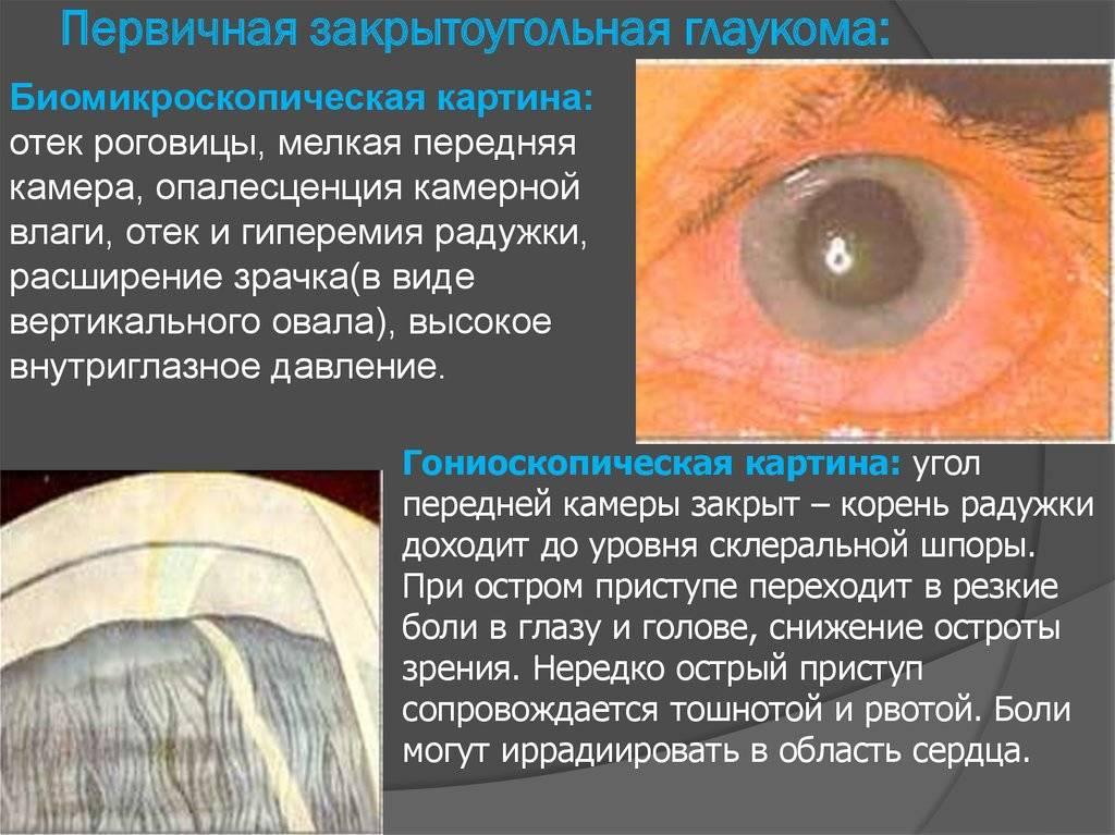 Терминальная глаукома: причины, диагностика и лечение — глаза эксперт