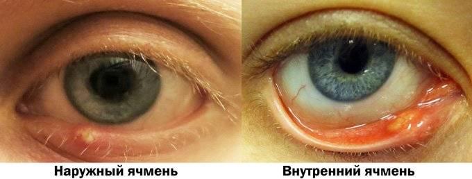 Ячмень на нижнем веке глаза: причины появления, симптомы, лечение