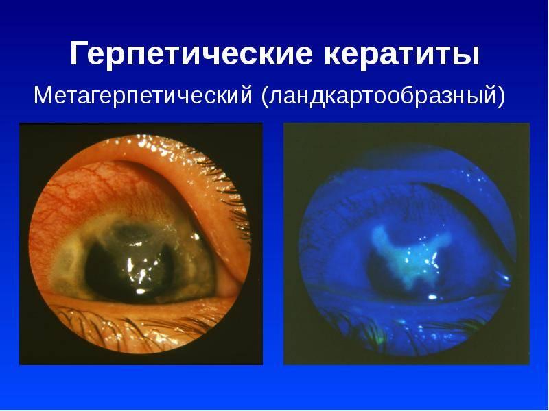 Герпетический кератит глаза: лечение, симптомы (фото), формы