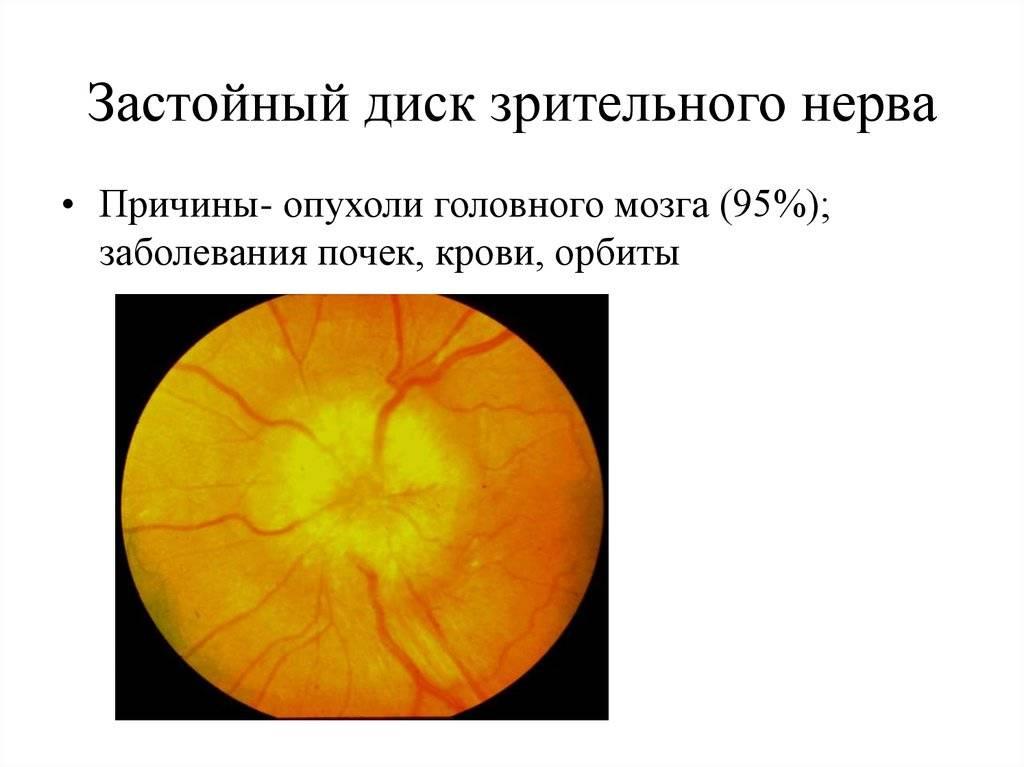 Застойный диск зрительного нерва: лечение, симптомы, причины, стадии