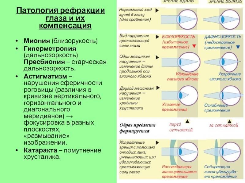 Миопический астигматизм - что это, сложный и простой