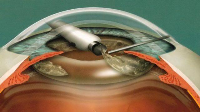 Факоэмульсификация катаракты: этапы, имплантация иол