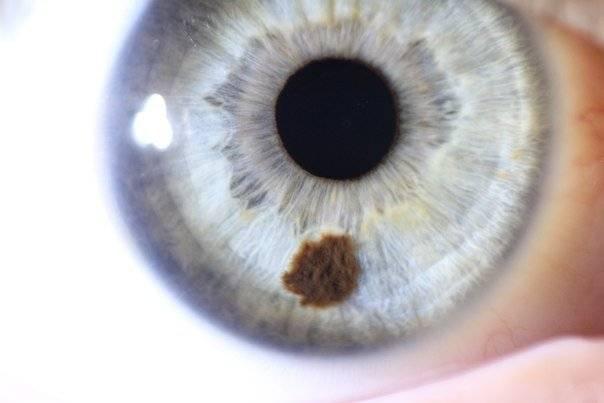 Черные, белые пигментные точки на радужке глаза: почему они появляются?