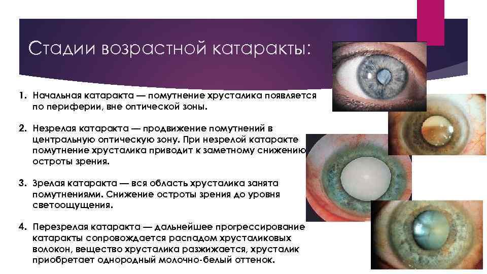 """Сенильная (возрастная) катаракта - """"здоровое око"""""""