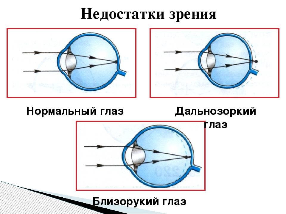 Как привыкнуть к контактным линзам: 8 шагов