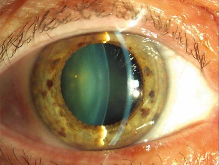 """Катаракта: симптомы и методы лечения - """"здоровое око"""""""