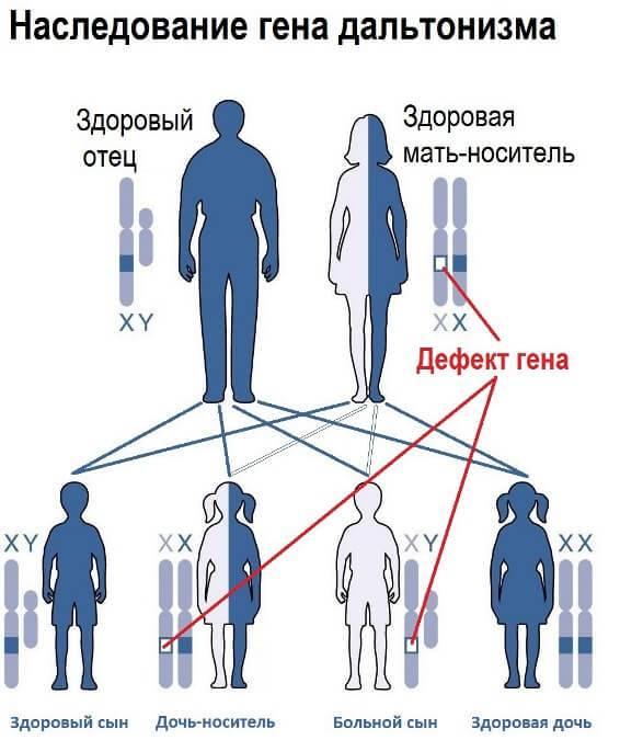 Как наследуется дальтонизм: ген монохромного зрения, как передается заболевание, наследование от отца или матери сыну