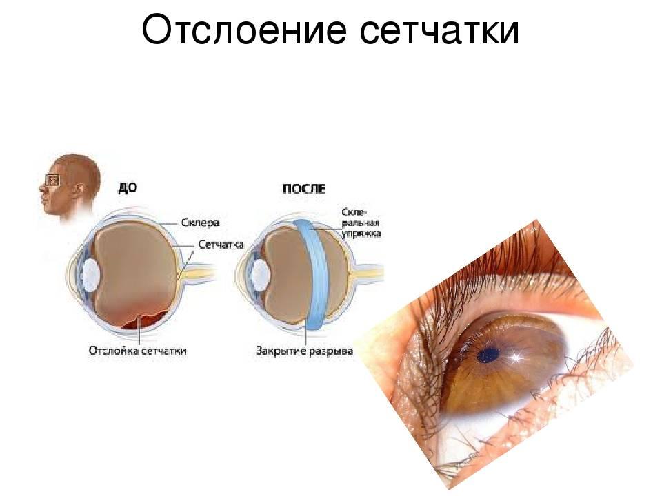 Расслоение сетчатки глаза: лечение, что это такое, причины развития, симптомы