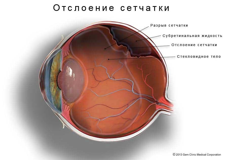 Отслоение сетчатки глаза: что это такое, признаки на ранних сроках, симптомы, диагностика отторжения, как лечить отошедшую сетчатку, криопексия, профиолактика
