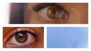 Туман в глазах: причины и лечение, капли и мази, после катаракты и бани, плохо видит один глаз