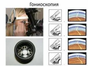Гониоскоп: что это и для чего применяется, показания к гониоскопии