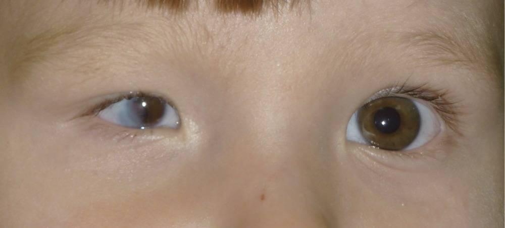 Врожденный микрофтальм и анофтальм: ответы на все ваши вопросы