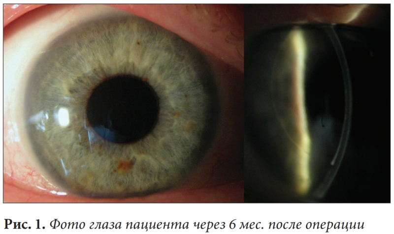 Пересадка роговицы, кератопластика в клинике микрохирургии глаза