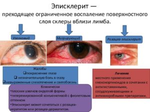 Светобоязнь глаз причины у детей. при каких заболеваниях возникает светобоязнь? лечение и профилактика