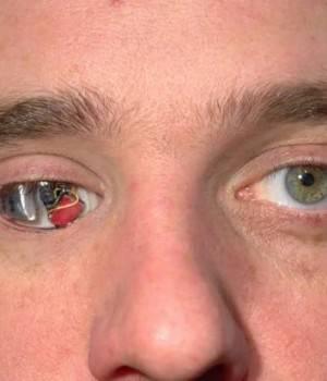 Глаз стал плохо видеть после удара
