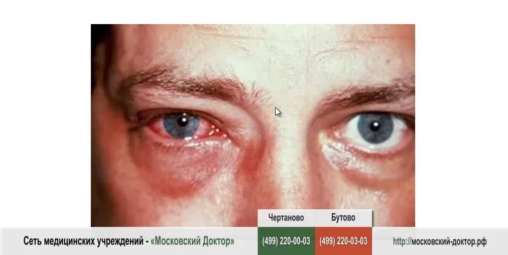 Воспаление глаза: причины, симптомы (покраснение слизистой), чем промыть глаза и лечить воспалительные заболевания у ребенка и взрослого, капли, народные средства, ромашка