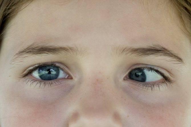 Опасна ли анизокория (зрачки разного размера) и как ее правильно лечить