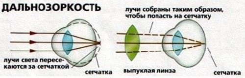 Что такое гиперметропия высокой степени (3 степень)