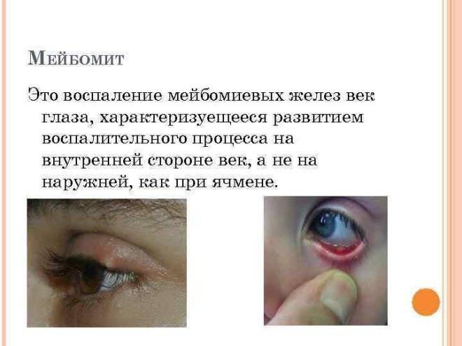Что такое мейбомит глаза: причины и лечение oculistic.ru что такое мейбомит глаза: причины и лечение