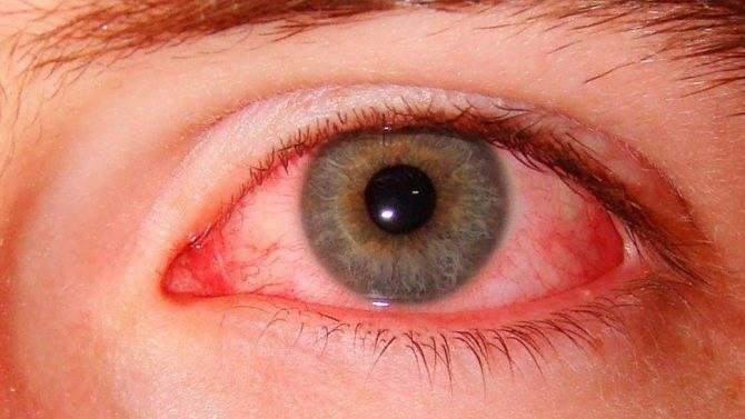 Почему от линз краснеют глаза и что при этом делать